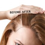 HOW TO FIND THE PERFECT HAIR TRANSPLANT SURGEON?